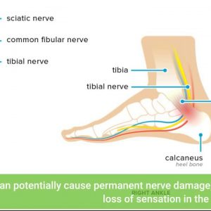 Examine This Report on Sciatic Nerve Pain Treatment & Doctor - Zaker Chiropractic
