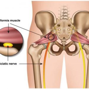 The smart Trick of Best Ways to Treat Sciatica Pain - Colorado Pain Care That Nobody is Discuss...