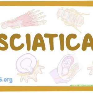 How Sciatica: Causes, Symptoms, Treatment, Prevention & Pain can Save You Time, Stress, and Mon...