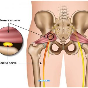 The Definitive Guide to Sciatica Exercises for Piriformis Syndrome Video - Spine-health