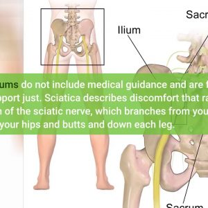 How Your Neck Alignment Can Be Causing Your Sciatica - An Overview