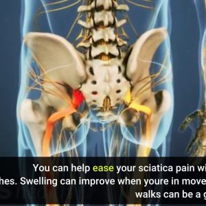 7 Simple Techniques For Sciatica & Pinched Nerve - Symptoms & Treatment - MedStar