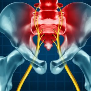 Sciatica - Kaiser Permanente - An Overview