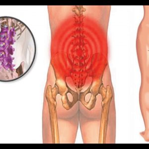 Not known Incorrect Statements About Is Your Back Pain Sciatica? - OnHealth