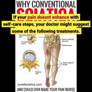 The Pain Treatment for Sciatica - Full Text View - ClinicalTrials.gov PDFs