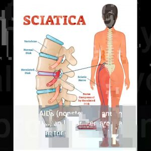 The Ultimate Guide To Sciatica – Penn Medicine