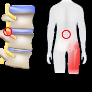 The Main Principles Of Sciatica: Sciatic Nerve Location, Treatment, Causes & Pain