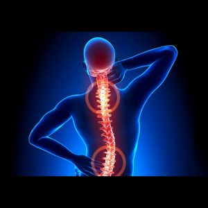 How What Is The Connection Between Sciatica, Spinal Stenosis can Save You Time, Stress, and Mon...