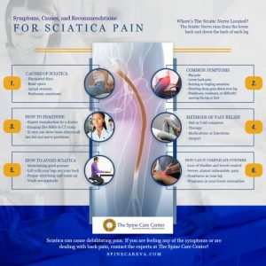 Some Of 5 Things You Need to Know About Sciatica - Abington
