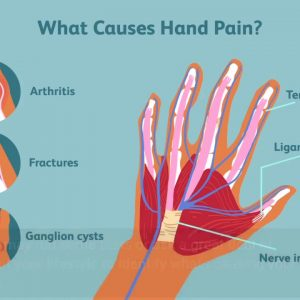 The Best Guide To Pinched Nerve - Causes, Symptoms, and How to Get Relief