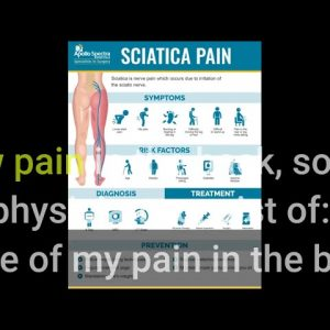 The Best Guide To Sciatica - Rheumatology